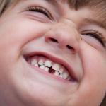 denti di bambino